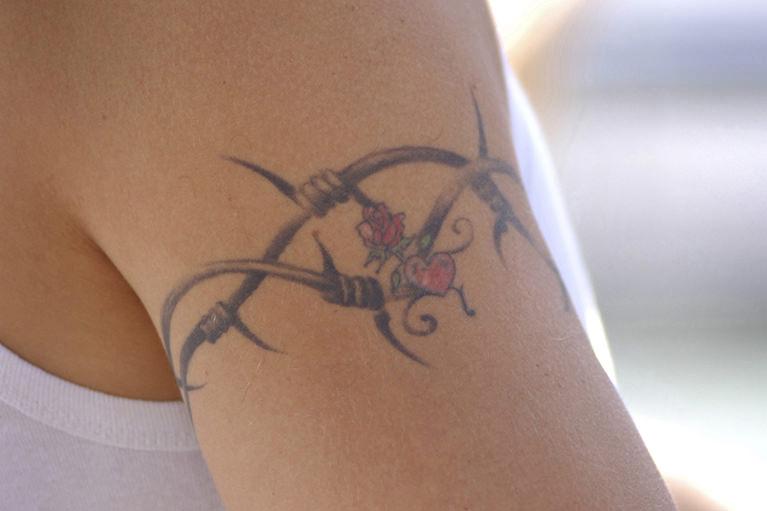 刺青の除去